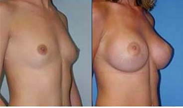 breast augmentation tunisia, breast enlargement tunisia